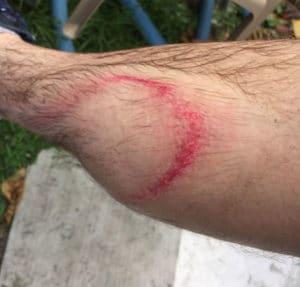 Pressure Washing Injury To Skin Laceration